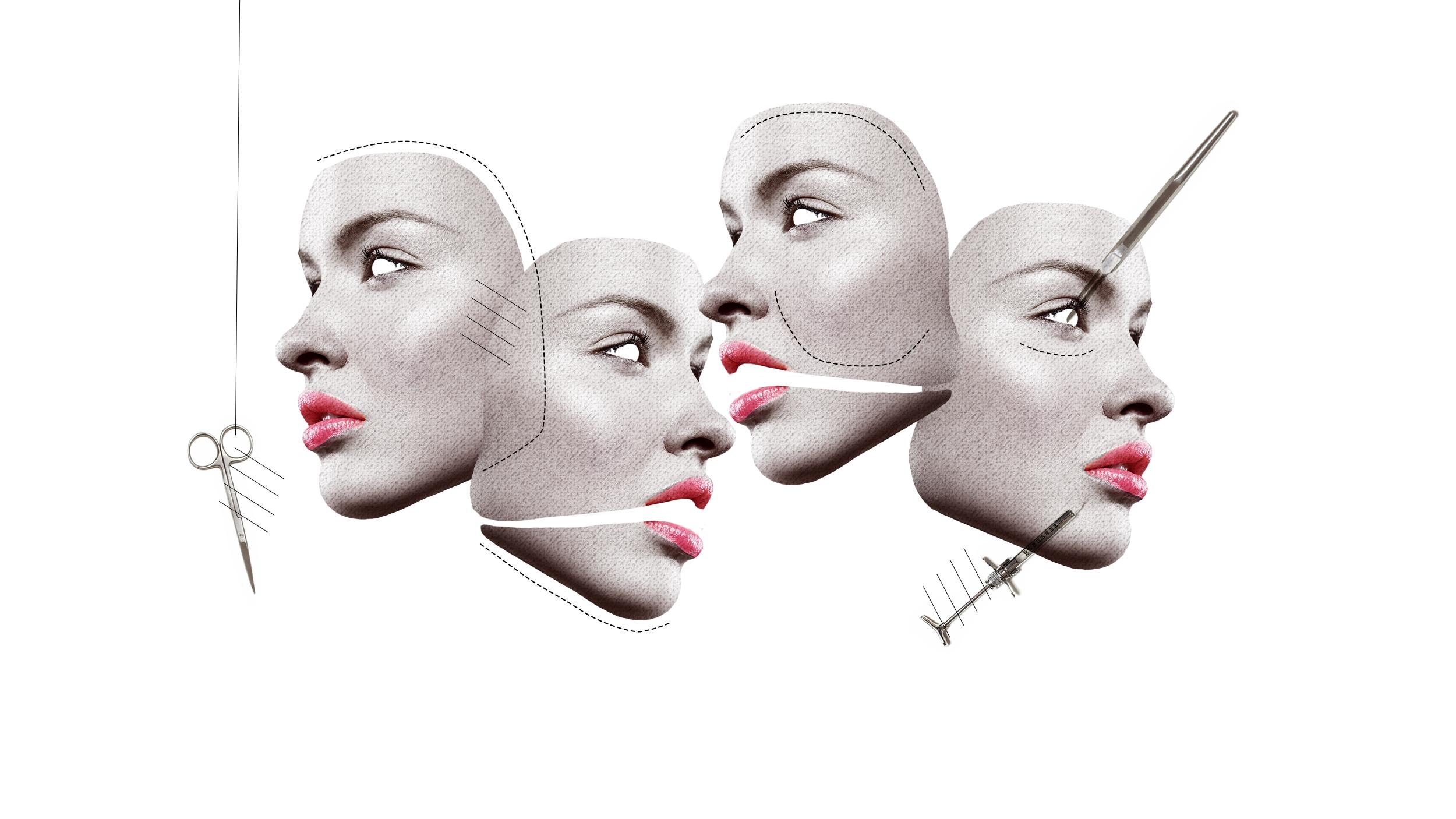 avantages chirurgie esthétique